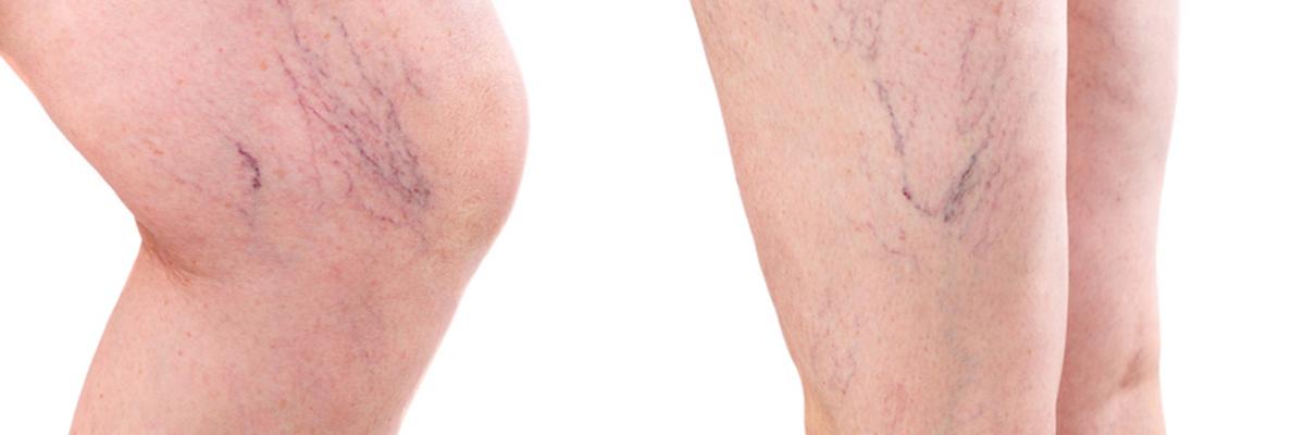 jambes gonflées traitement